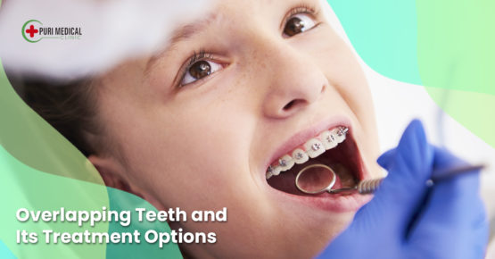 How a dental clinic treat your overlapping teeth - tips by Puri Medical Clinic - Professional cosmetic dentistry in Bali